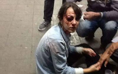 Jornalista atingida por bala de borracha revelou que polícia partiu para cima da imprensa