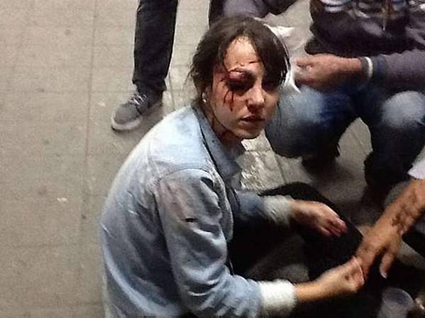 reporter-Giuliana-Vallone ferida