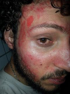 Militante Rodrigo Dantas recebeu spray de pimenta dentro do olho  quando já estava imobilizado no chão