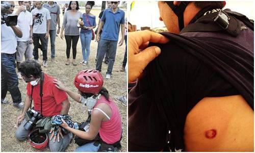 SJP-DF lança carta aberta em repúdio à truculência da Polícia Militar do DF. Policiais utilizaram gás de pimenta, gás lacrimogênio, balas de borracha e cães para coibir diretamente a atividade de jornalistas, fotógrafos e cinegrafistas durante a cobertura dos protestos de 7 de Setembro. Confira a carta http://tinyurl.com/nngm7sy Foto: Carlos Vieira, do Correio Braziliense, precisou de ajuda para se recuperar. André Coelho, de O Globo, foi atingido por bala de borracha. Breno Fortes/Iano Andrade/ CB/DAPress