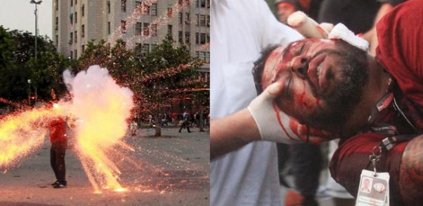 montagem-cinegrafista-ferido-em-protesto-no-rio