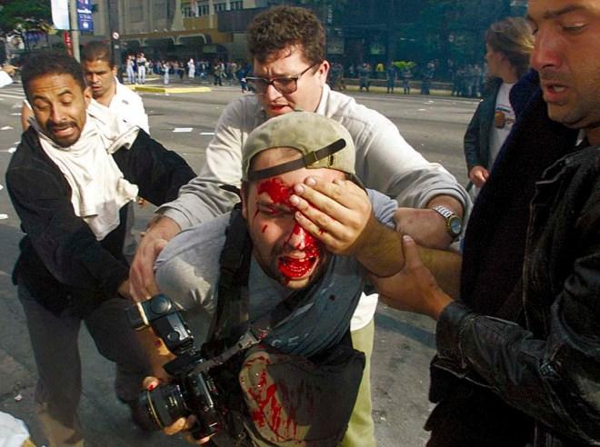 Alex Silveira baleado pela polícia de Alckmin. Foto de Sebastião Moreira